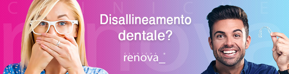 Disallineamento dentale 3